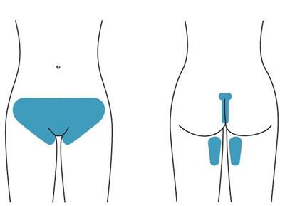 Крем для депиляции отзывы, какой лучше для интимных зон